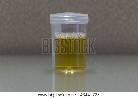 Urine For Examination In Laboratory