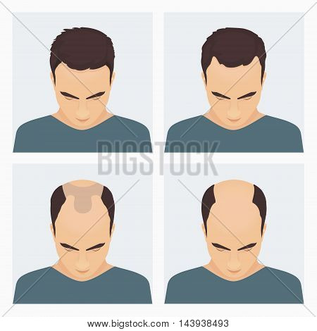 Male hair loss stages set. Male pattern baldness. Different stages of hair loss in man. Transplantation of hair. Human hair growth. Hair care concept. Vector illustration.