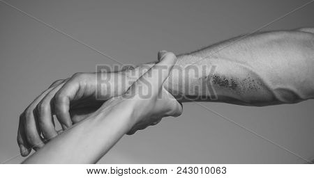 Support, Rescue And Help Concept. Two Arms On Blue Sky. Hand Female Holding Male Wrist With Bloody W