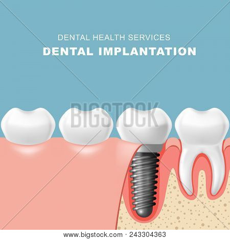 Teeth and dental implantat inserted into gum - tooth implantation poster
