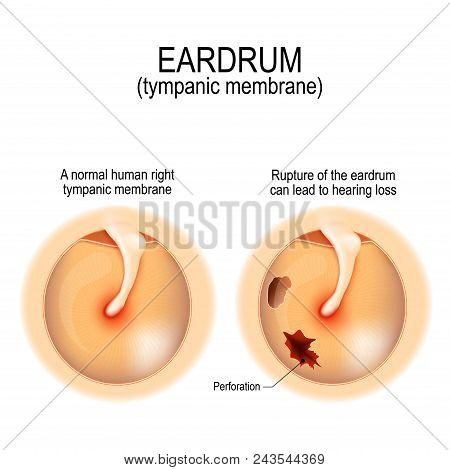 Ruptured Eardrum. Anatomy Of The Humans Eardrum. Healthy And Perforated Tympanic Membrane. Vector Il