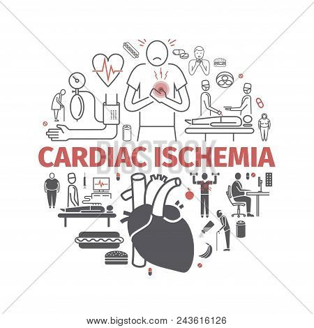 Cardiac Ischemia. Symptoms, Treatment. Line Icons Set. Vector Signs For Web Graphics