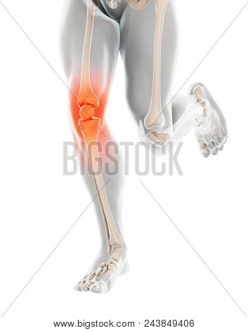 Knee Painful - Skeleton X-ray, 3d Illustration Medical Concept.
