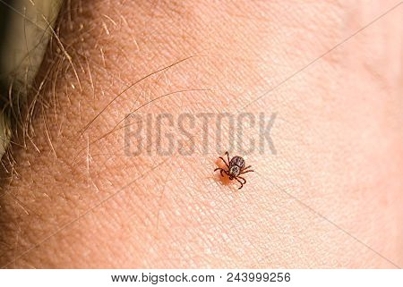 The Tick Ixodes Ricinus Crawling On Human Skin. Encephalitis Tick. This Kind Of Animal Is A Distribu