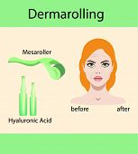 Vector illustration, derma mesorolling and before after effect, girl's face poster