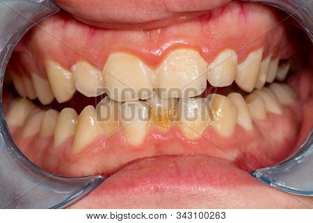 Plaque Of The Patient, Stone. Dentistry Treatment Dental Plaque, Professional Oral Hygiene. The Conc