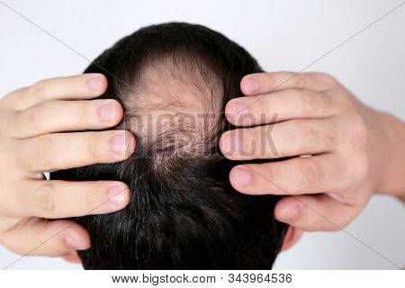 Baldness, Hair, Loss, Man, Head, Hand, Concerned, Male, Bald, White, Background, Fall, Health, Skin,