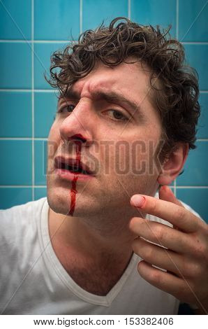 Curly haired man in bathroom with bad nose bleed