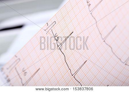 ECG complex on the paper. Macro photo