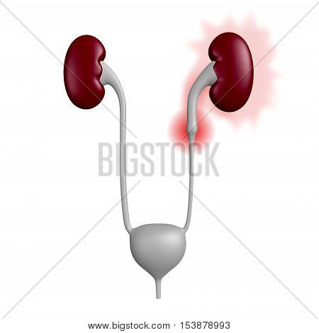 3D illustration of urinary tract with a stone blocking one of the ureters