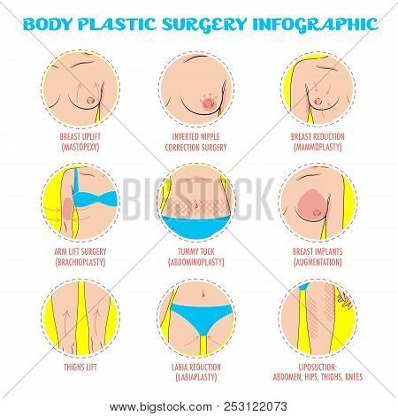 Cosmetic Plastic Surgery Vector Icons For Infographic, Posters And Brochures. Rhinoplasty, Face Lift