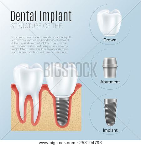 Structure Of Dental Prosthetics Infographics Poster With Denture Near Healthy Tooth Crown Abutment I