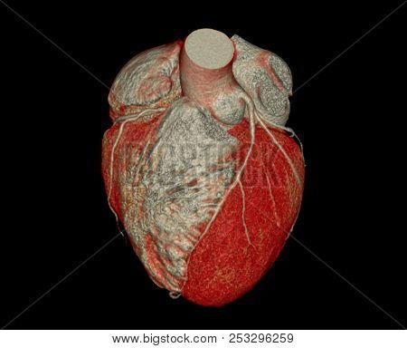 Muiti View Of Cta Coronary Artery  3d Rendering Image. Ct Angiographphy For Heart Disease .