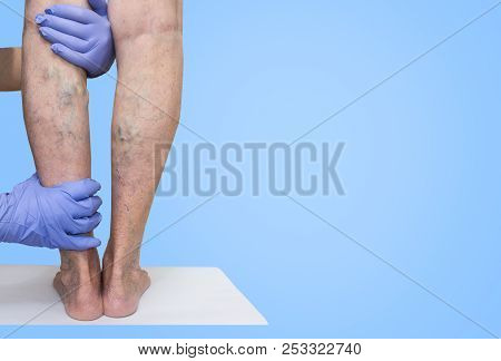 Lower limb vascular examination because suspect of venous insufficiency. The female legs on blue background. varicose veins concept poster