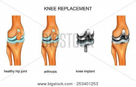Vector Illustration Of A Total Knee Replacement