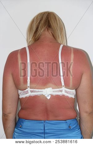 Sunburn from beach sun light on shoulder and back of caucacian girl. Woman sunburn. Female body. Body care. Sunburn on female back. Traces of sun burn on female body. Woman after beach poster