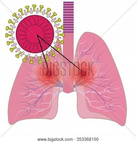 Lungs Affected With Coronavirus Infection Covid19 Vector Illustration Isolated On A White Background