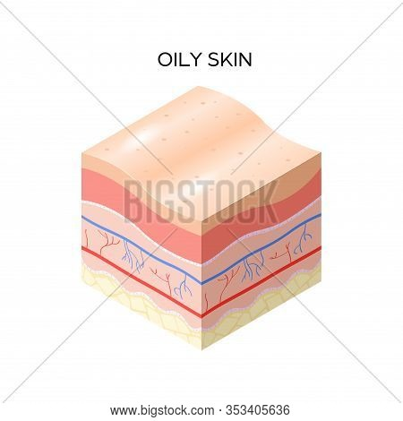 Oily Skin Cross-section Of Human Skin Layers Structure Skincare Medical Concept Flat Vector Illustra