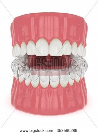 3d Render Of Jaw With Invisalign Removable Retainer With Jaw Over White Background