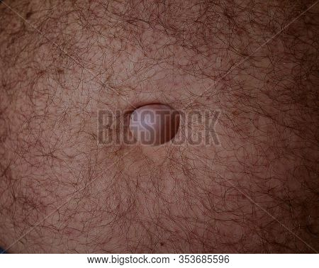 Medical Examination Of The Patients Umbilical Hernia Of The Abdomen