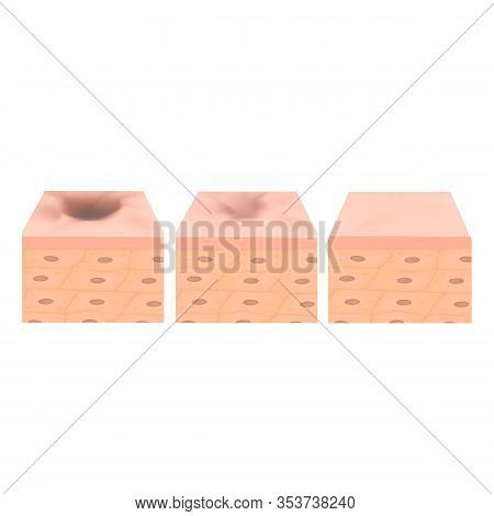 Acne Scars. Scar Atrophic Treatment. The Anatomical Structure Of The Skin With Acne. Illustration On