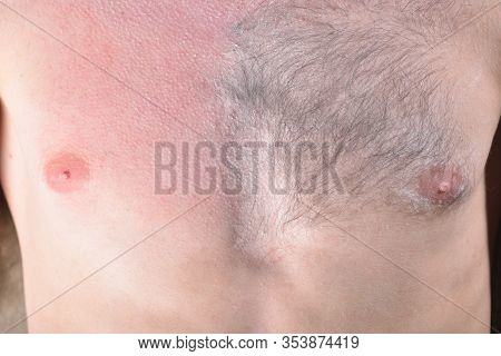 Male Depilation. Half Of Male Chest Without Hair After Waxing. Close-up