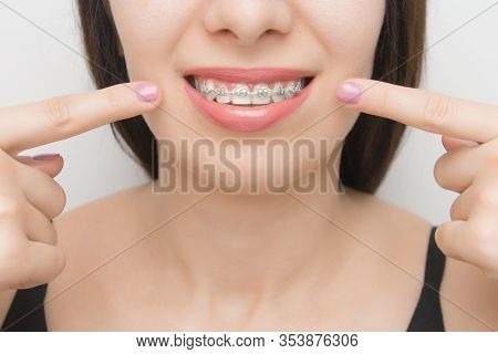 Dental Braces In Happy Womans Mouths Who Shows By Two Fingers On Brackets On The Teeth After Whiteni