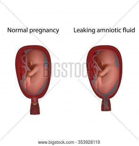 Normal And Leaking Amniotic Fluid. Cervical Weakness. Fetus In Uterus, Womb, Placenta, Umbilical Cor