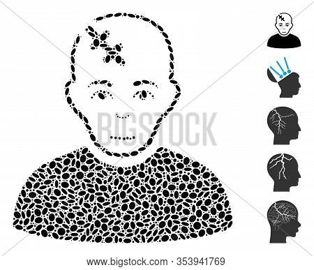 Dot Mosaic Based On Head Hurt. Mosaic Vector Head Hurt Is Composed With Scattered Ellipse Items.