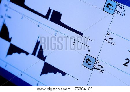 Monitor Screen With Variable Curves. Business Concept.