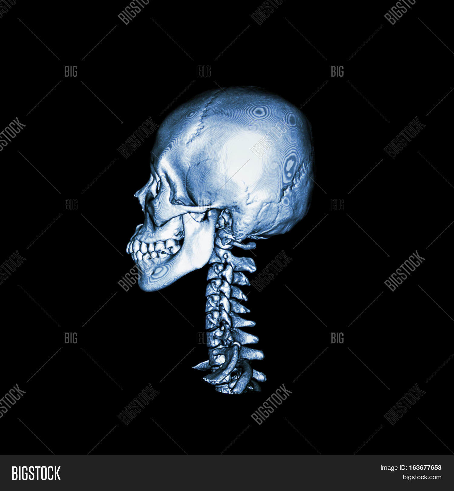 Ct Scan 3d Image Image Photo Free Trial Bigstock