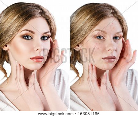 Woman with problem skin on her face before and after make-up over white background