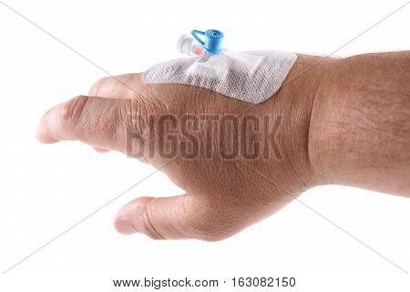 Intravenous cannula Venflon founded on men's hand