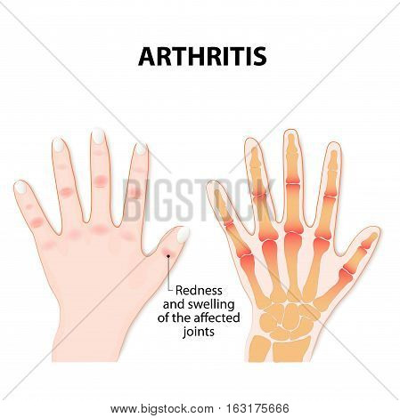 female Hand with arthritis. medical illustration. vector