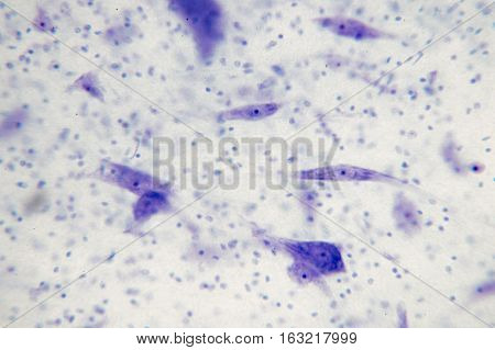 Neurons in the brain from microscope view