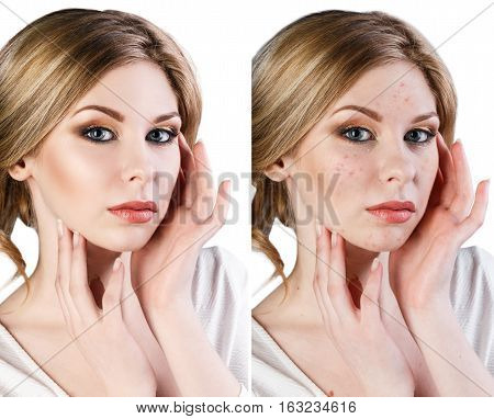 Comparison portrait of young woman with problematic skin. Before and after treatment