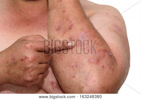 Psoriasis is an autoimmune disease that affects the skin cause skin inflammation red and scaly.