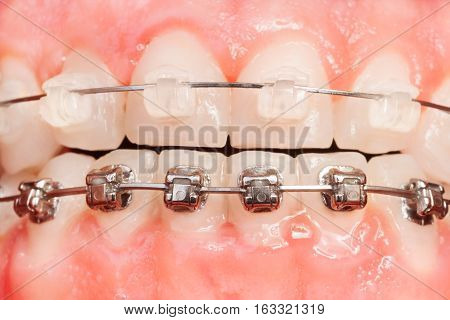 Close-up picture of tooth alignments with ceramic and metal braces