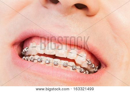 Close-up picture of man's smile with ceramic and metal orthodontic braces