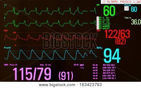 Close up of monitor with EKG or electrocardiogram showing paced rhythm with premature beat  (green lines), arterial blood pressure  (red line), oxygen saturation ( blue line) and noninvasive blood pressure.