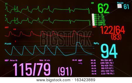 Close up of monitor with EKG or electrocardiogram showing a paced rhythm followed by sinus bradycardia (green lines), arterial blood pressure  (red line), oxygen saturation  (blue line) and noninvasive blood pressure.