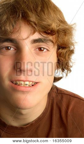 attractive fourteen year old boy with braces on his teeth poster