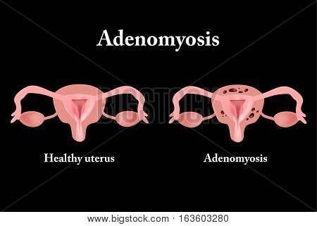 Endometriosis. The structure of the pelvic organs. Adenomyosis. Vector illustration.