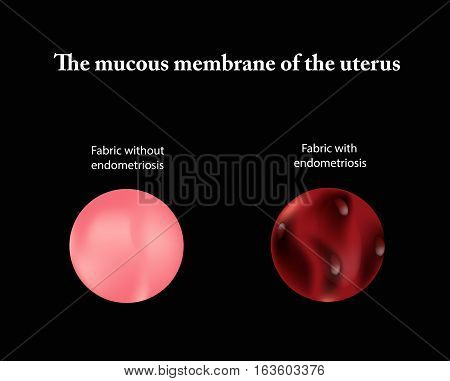 Endometriosis. The structure of the pelvic organs. Adenomyosis. The endometrium. Vector illustration.