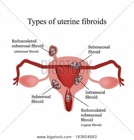 Types of uterine fibroids. Endometriosis. Infographics. Vector illustration isolated on white background.