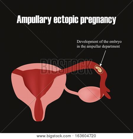 Development of the embryo in the ampullar department. Ectopic pregnancy. Infographics. Vector illustration.