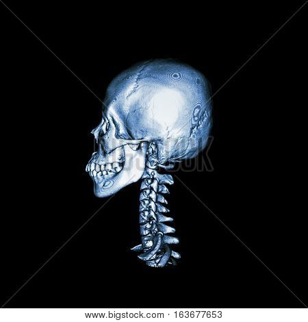 CT scan with 3D image of normal human skull and cervical spine . lateral view .