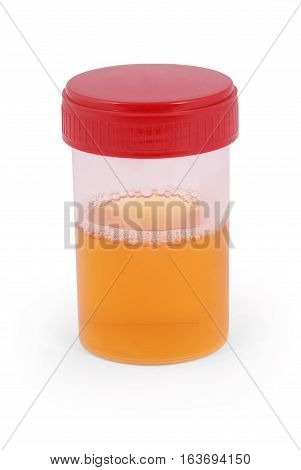 Sterile Medical container for urine with biomaterial. Clipping path inside.