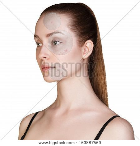 Circles shows problem skin of young woman over white background.