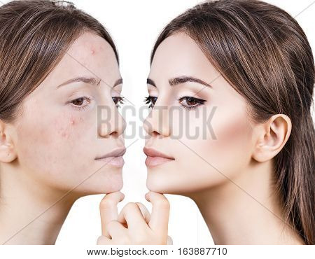 Portrait of woman face before and after treatment and makeup.